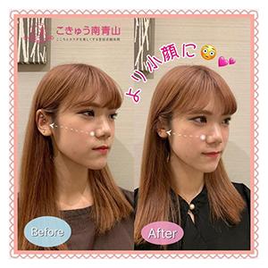 表参道駅の美容鍼・鍼灸美容の口コミ2