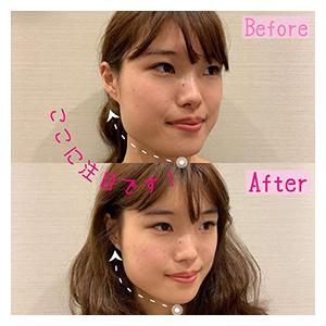 表参道駅の美容鍼・鍼灸美容の口コミ6